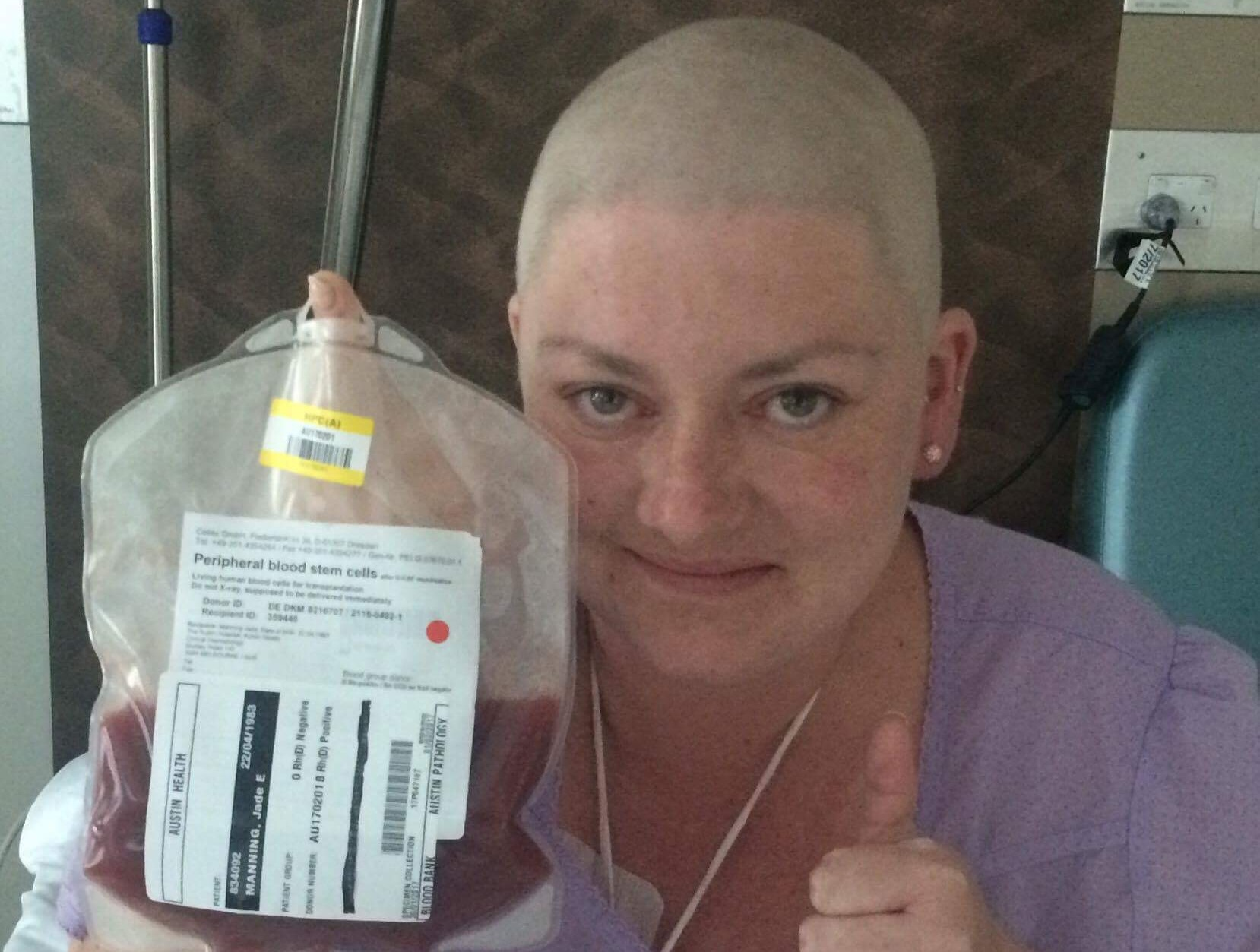 Stem Cell transplant Jan 2017